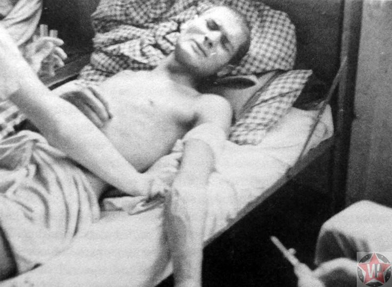 Узник концлагеря Дахау во время медицинского эксперимента